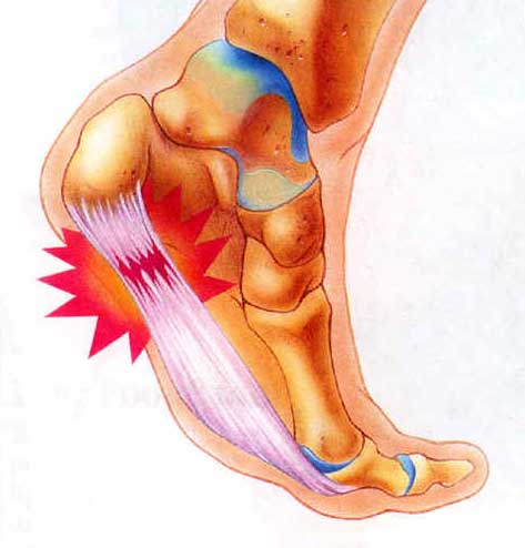 Information on plantar fasciitis